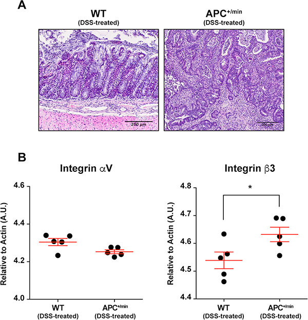 Integrin αVβ3 expression in the colon of DSS-treated APC+/min and DSS-treated WT mice.