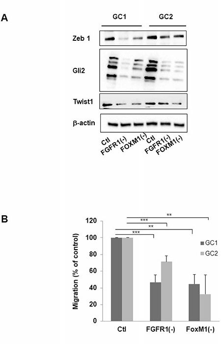 Inhibition of FGFR1 or FOXM1 modifies expression of genes implicated in mesenchymal transition and migration of cells derived from human GBM biopsy specimens.