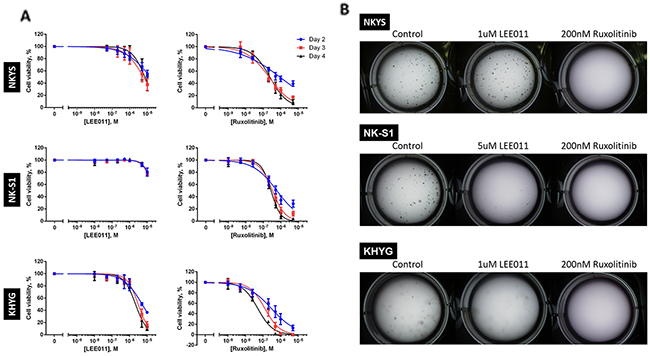 LEE011 and ruxolitinib inhibits growth in NKTCL cell lines.