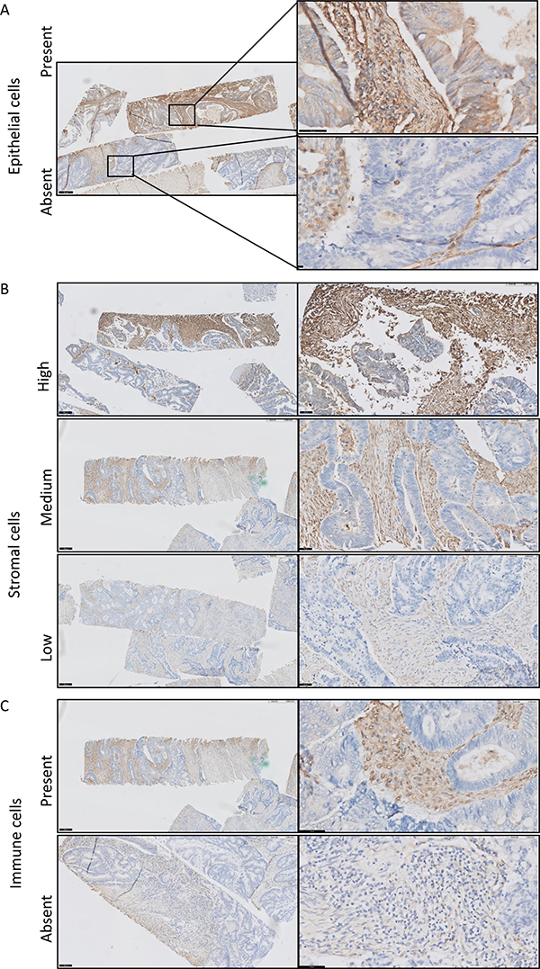 Immunohistochemical staining of galectin-1 in colorectal cancer.