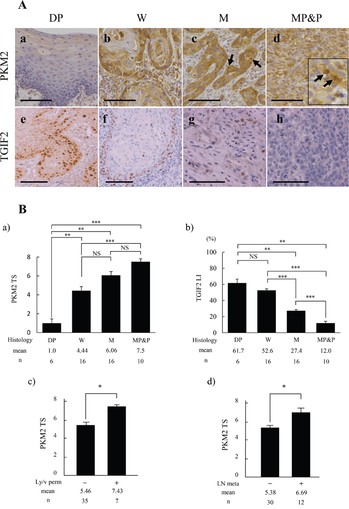 Comparison of PKM2 and TGIF2 expression with clinicopathological indices by immunohistochemical analyses in oral epithelial dysplasia (DP) and each differentiation of oral squamous cell carcinoma (SCC).