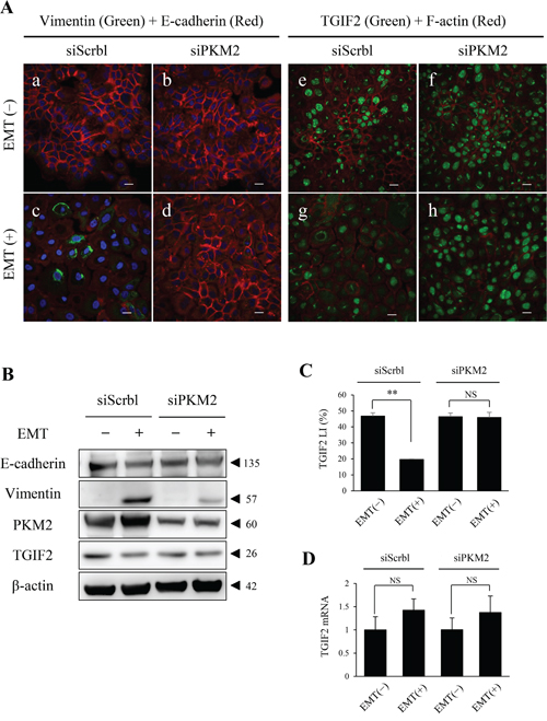 PKM2 knockdown in HSC-4 cells in EMT (+) results in the rescue of TGIF2 expression.