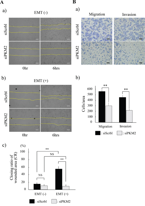 Functional analyses of PKM2 in HSC-4 cells.