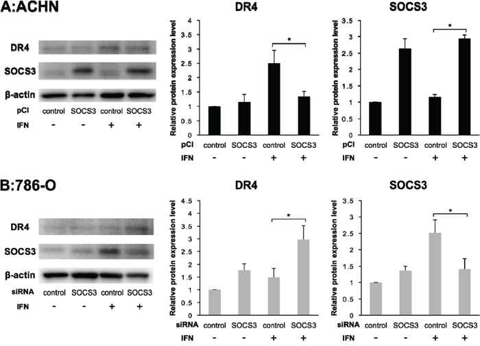 DR4 protein expression depends on SOCS3.