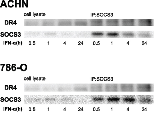 SOCS3 binds to DR4 protein.