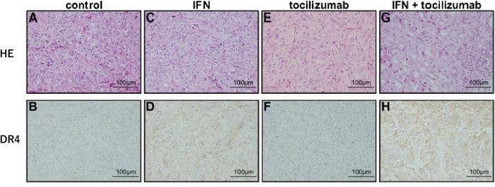 Immunohistochemical staining of tumor xenografts.