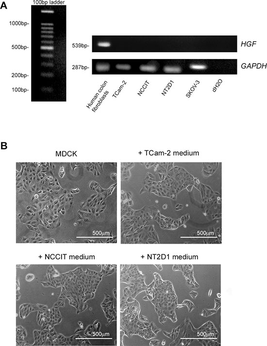 HGF expression in (T)GCT cell lines.