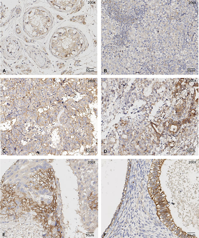 c-MET immunoreactivity in TGCT histological samples.