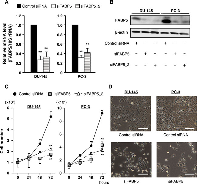 FABP5 knockdown significantly suppresses cell growth in PCa cells.