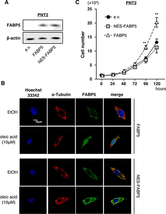 Nuclear localization of FABP5 promotes cell proliferation.