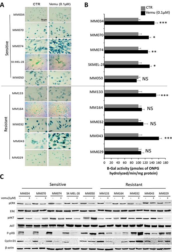Effect of BRAF inhibition by vemurafenib on β-Gal activity and signaling pathways in sensitive and intrinsically resistant mutant BRAF melanoma cell lines.