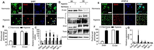 Effects of hypoxia on EMT of 21PT and 21MT-2 within hydrogel constructs.