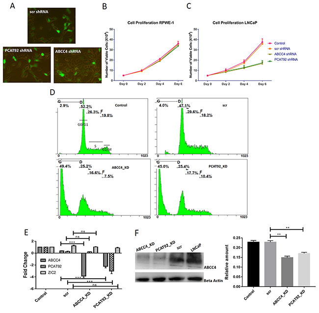 Proliferation assay in LNCap cells using PCAT92 and ABCC4 knockdown experiments.