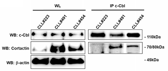 Analysis of c-Cbl and Cortactin association in CLL B lymphocytes.