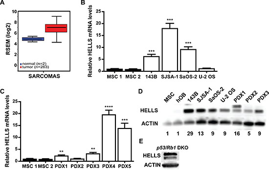 HELLS is overexpressed in human and mouse osteosarcoma.