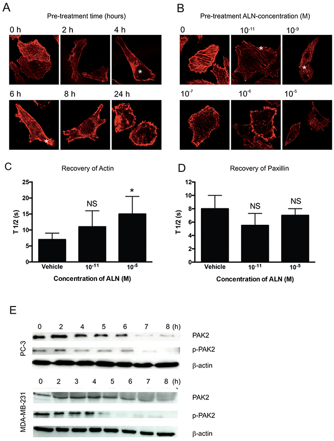 ALN interferes with F-actin organization in PC-3 cells.