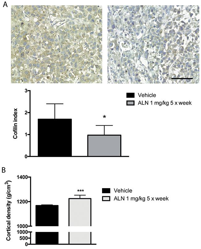 ALN decreases cofilin level of s.c. PC-3 tumor xenografts.