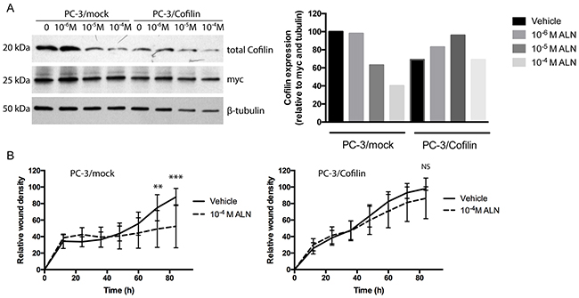Transfection of PC-3 cells with a cofilin expressing vector makes PC-3/cofilin cells more resistant to ALN treatment.