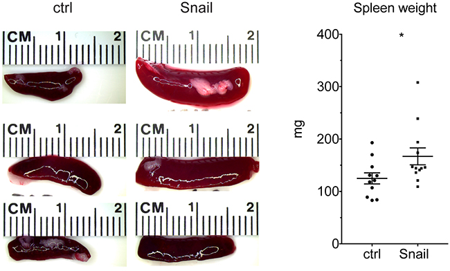 Snail expression in lung tumors leads to splenomegaly.