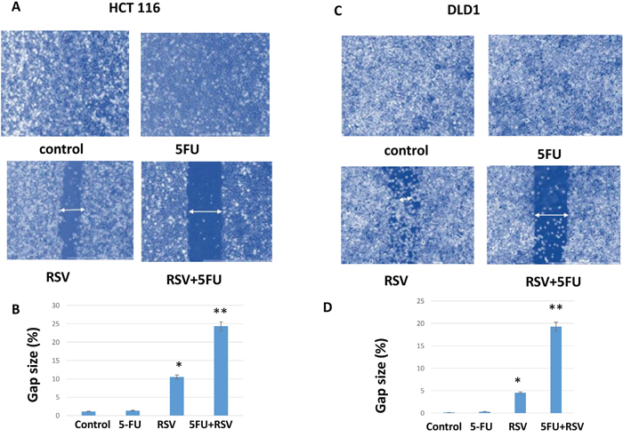 Wound healing assay of HCT116 and DLD1 treated with resveratrol and 5-FU.