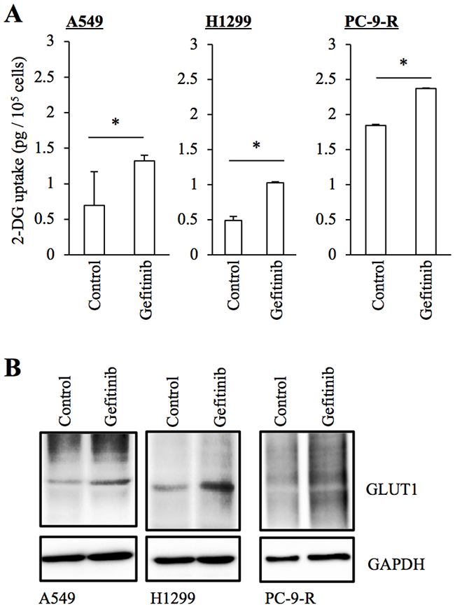 Increased GLUT1 expression and glucose uptake in NSCLC cells treated with gefitinib.