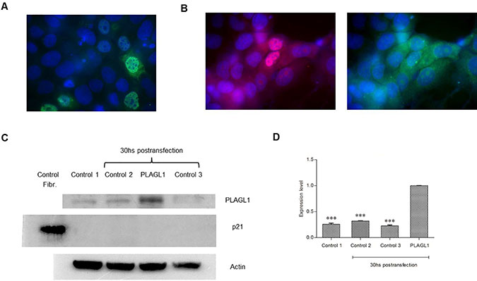 Overexpression of PLAGL1 protein in PLC/PRF/5 cells.