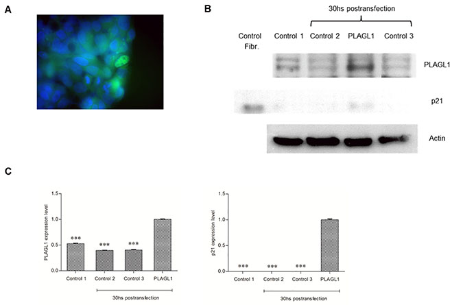 Overexpression of PLAGL1 protein in HepG2 cells.