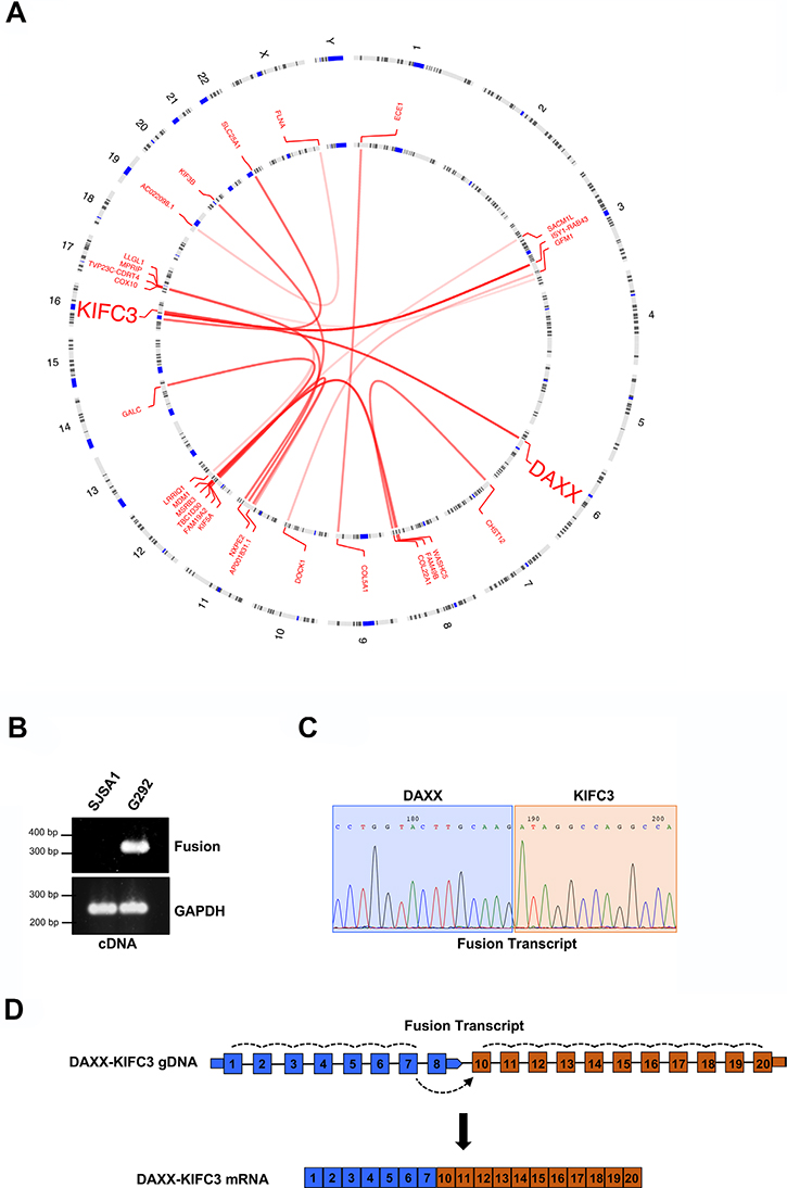 Identification of a DAXX-KIFC3 fusion transcript in an ALT positive osteosarcoma.