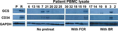 Expression of GCS and CD34 in the PBMCs from different CLL patients.