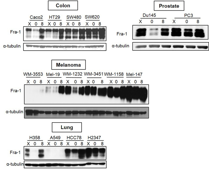 Analysis of Fra-1 expression in cancer cell lines of different origins.