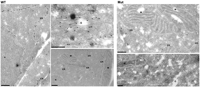 Intracellular expression pattern of antithrombin in HEK-EBNA cells 24 h after transfection with wild-type (WT) and mutant plasmids (Mut).