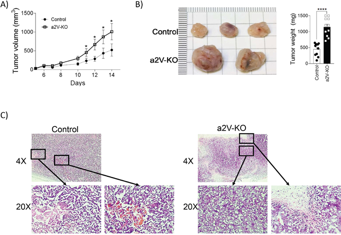 Lack of immune cell-associated a2V leads to an increase in growth and size of breast tumors.