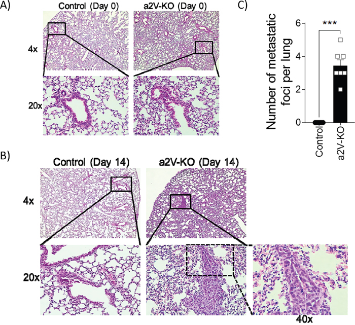 Lungs of a2V-KO mice show increased metastasis.