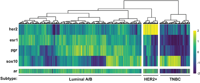 Androgen Receptor expression is inversely correlated with the TNBC marker, Sox10.