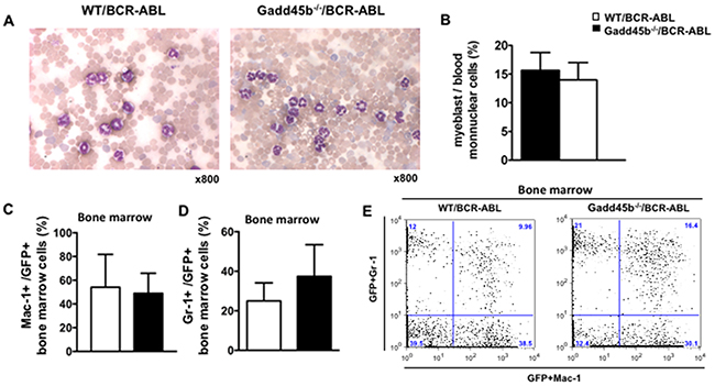 Both Gadd45a-/-/BCR-ABL and WT/BCR-ABL recipients developed CML.