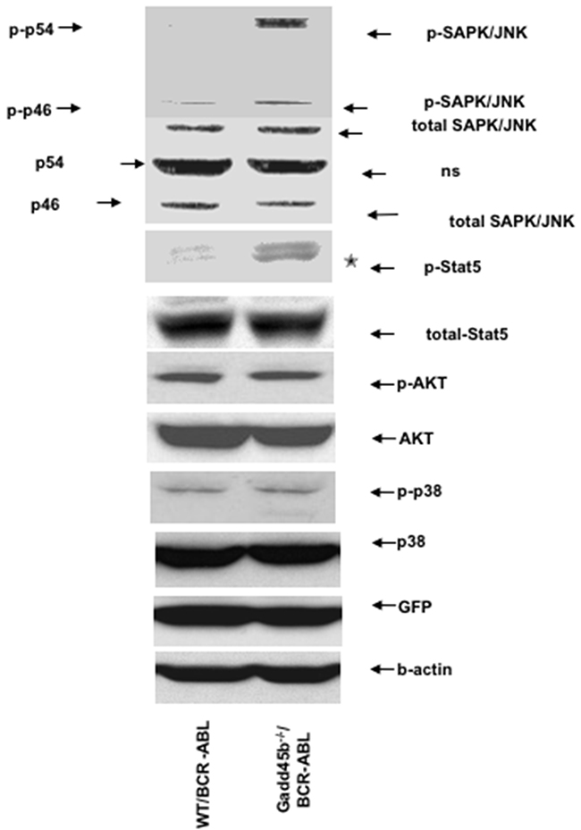 Loss of Gadd45b hyperactivates JNK and Stat5.