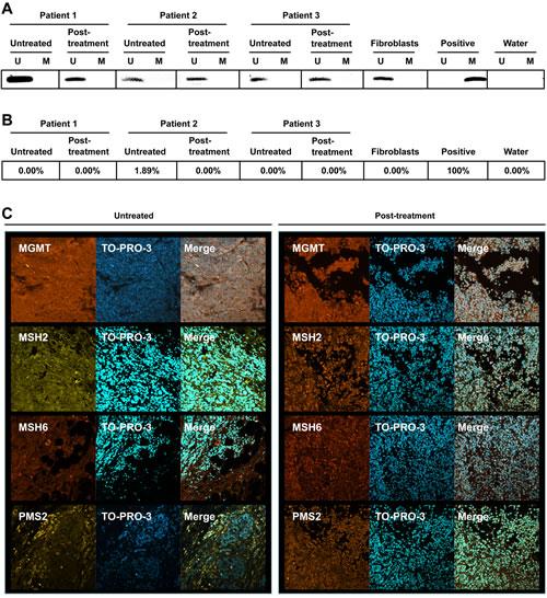 MGMT, MSH2, MSH6 and PMS2 status of melanomas.