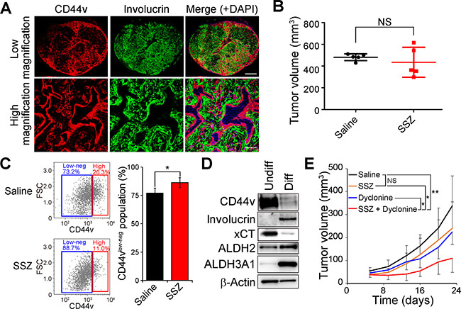 Dyclonine enhances the antitumor effect of sulfasalazine on HNSCC tumors consisting of CD44vhigh stemlike tumor cells and involucrin+ differentiated tumor cells.