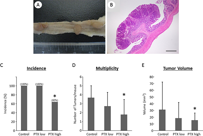 Effects of pentoxifylline on AOM/DSS-induced colon tumor in KAD rats.