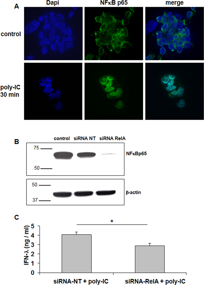 Involvement of NFκBp65 (RelA) signaling in Poly-IC-induced IFN-λ production in T84 cells.