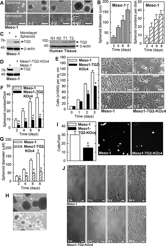 TG2 is enriched in MCS cells and required for survival.