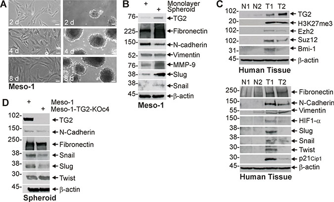 TG2 expression is associated with enhanced EMT marker expression.