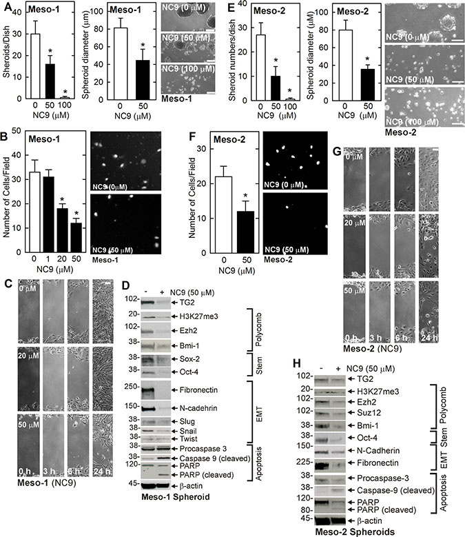 NC9 treatment suppresses the MCS cell phenotype.