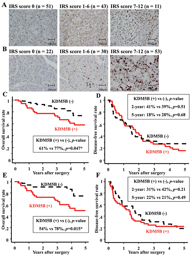 KDM5B/JARID1B was overexpressed and contributed to poor prognosis in HCC.