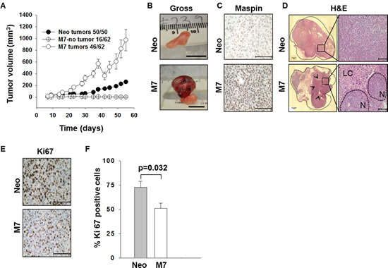 Characterization of prostate xenograft tumors.