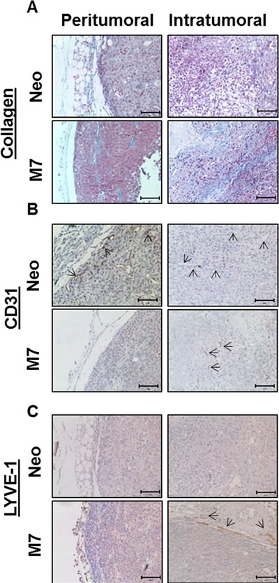 Characterization of maspin induced stromal reactivities.