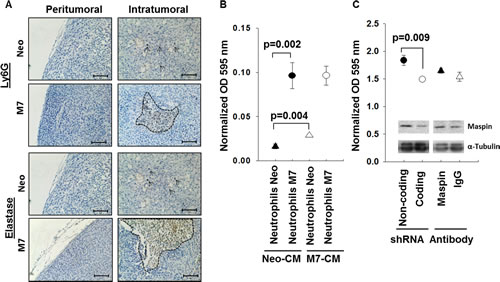Characterization of neutrophil infiltration and motility.
