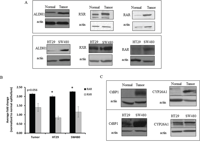 CRC tissue and CRC cell lines express higher levels of ALDH1 and retinoid receptors than normal colonic tissue sections.