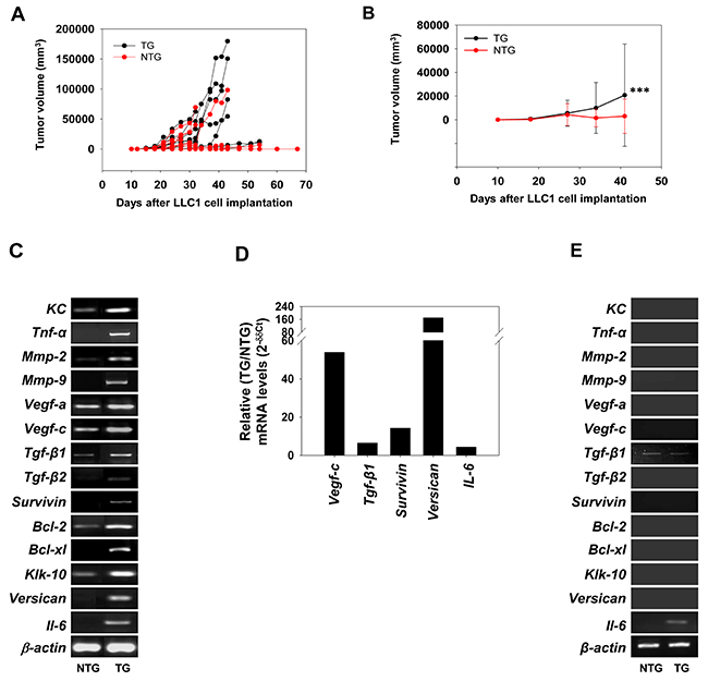 Effect of βhCG transgenesis on LLC1 tumor growth and on levels of hCG-driven, tumor-promoting molecules.