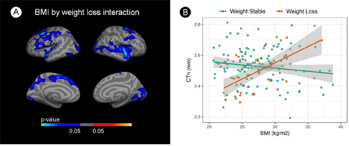 Interaction analysis between body mass index and cortical thickness by weight loss.